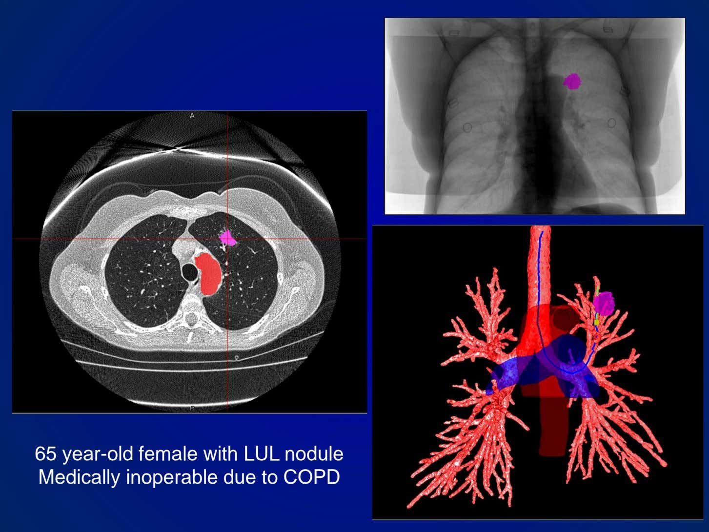65 year-old female with LUL nodule Medically inoperable due to COPD