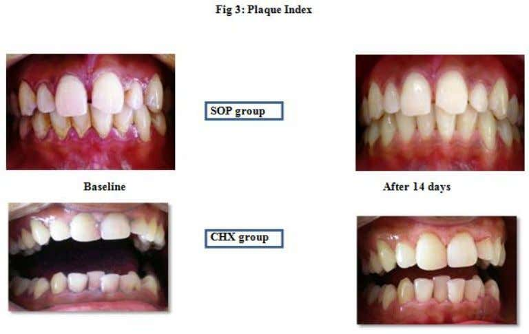 Oil pulling as an adjunct to scaling and root planing: A Clinico-Microbial study www.ijpsi.org 40 |