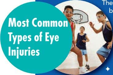 Mos t Common Types of Eye Injuries