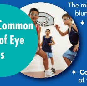 Mos t Common Types of Eye Injuries The most common types of eye injuries that can