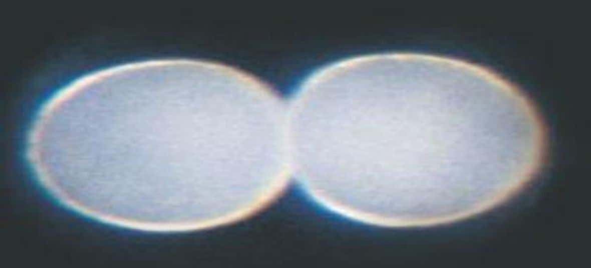 2. Growth and Development Sand dollar embryo shortly after fertilized egg divided, forming two cells