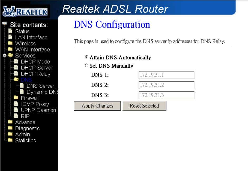 Field Description Attain DNS Select this item if you want to use the DNS servers
