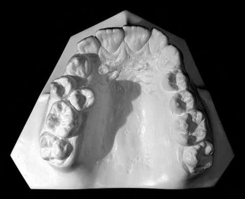 Bottom : Occlusal view of the same subject's dental cast. Fig. 2 . Case of an