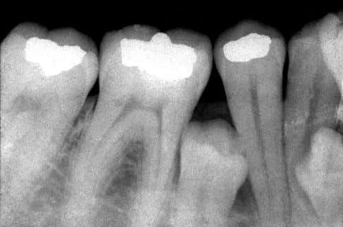 that resist tooth eruption as well as the normal migration Fig. 5 . Radiograph of an