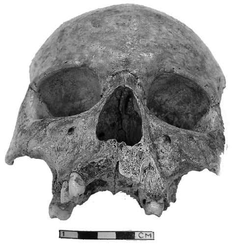80 A. AL-SHORMAN Fig. 1 . An anterior view of the cranium. Photo- graphed by Y.