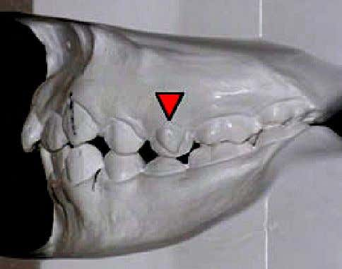 tubercle on the left maxillary second premolar (arrow). Fig. 6 . Left view of the articulated