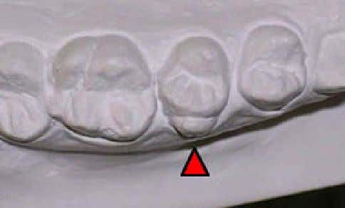 for unilateral right mastication. The dental diagnosis Fig. 8 . Oclusal view of the maxillary study