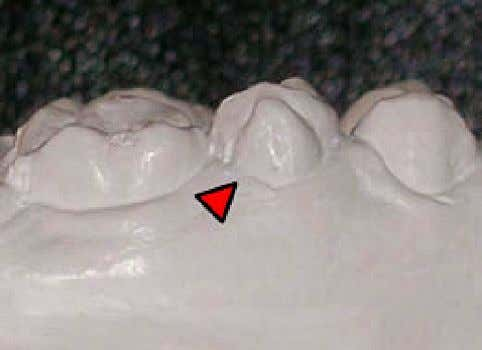 68 C. RODRIGUEZ AND F. MORENO Fig. 9 . Buccal view of the maxillary study model: