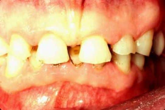 There was insufficient clinical crown volume of the incisors for adequate retention so flap surgery was
