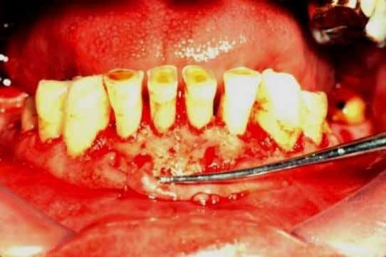 Bone is recontoured so that 2 mm distance between level of proposed crown margin and crest