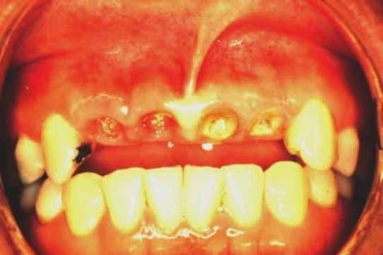 Soft tissue removal will be adequate for exposure of sound tooth for margins with a 1
