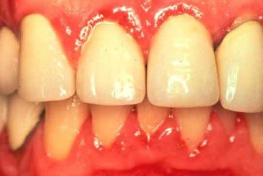 Both Central Incisors and right lateral incisor have crowns violating Biologic Width concepts.