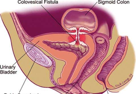 z Colovesical fistula ▪ Connection between the colon and urinary bladder ▪ Complication of: ▪ diverticulitis,