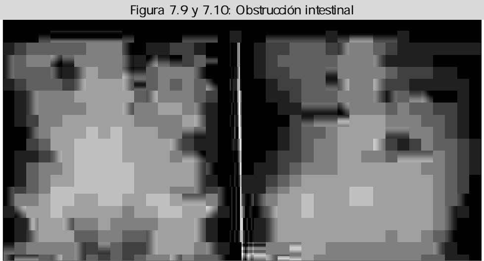 Figura 7.9 y 7.10: Obstrucción intestinal