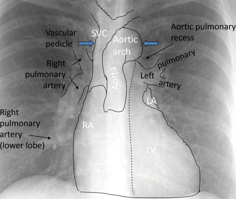 Aortic pulmonary Vascular SVC Aortic recess pedicle arch Right pulmonary Left artery LA Right pulmonary artery
