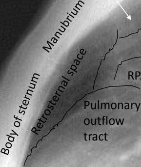 Pulmonary outflow tract
