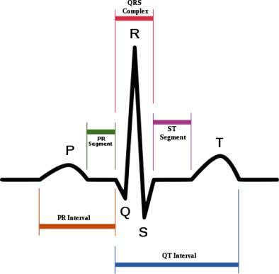 Fig. 1.1.2: A typical heartbeat as shown on an ECG 1.2 Ablative Surgery In this subsection