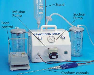 Stand Infusion- Suction Pump Pump Foot- control Conform cannula