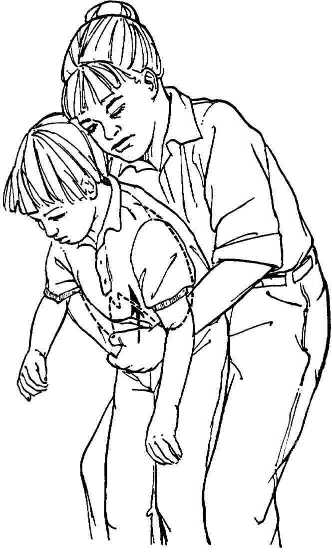 Figure 18 Manœuvre de Heimlich en position debout. Source : Emergency Cardiac Care Committee and