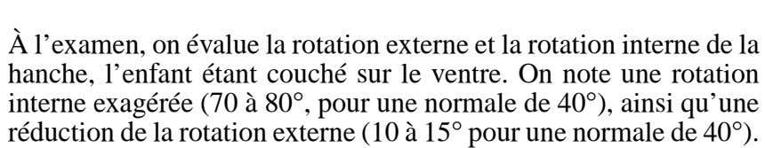 – À l'examen, on évalue la rotation externe et la rotation interne de la hanche,
